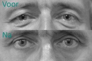 Quole for men voor een ooglidcorrectie
